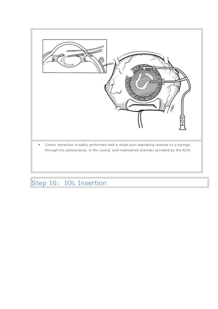 manual small incision cataract surgery course