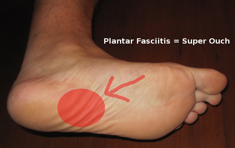 manual physical therapy for plantar fasciitis